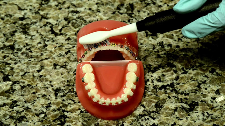 Image for Brushing and Flossing with Braces