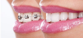 How Braces Work in Five Simple Steps