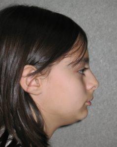 Alexis L before profile
