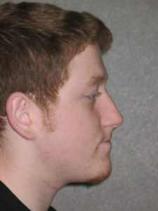 David C. before profile