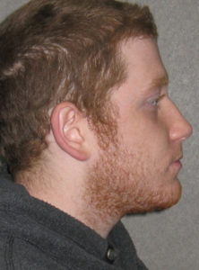 David C. after profile